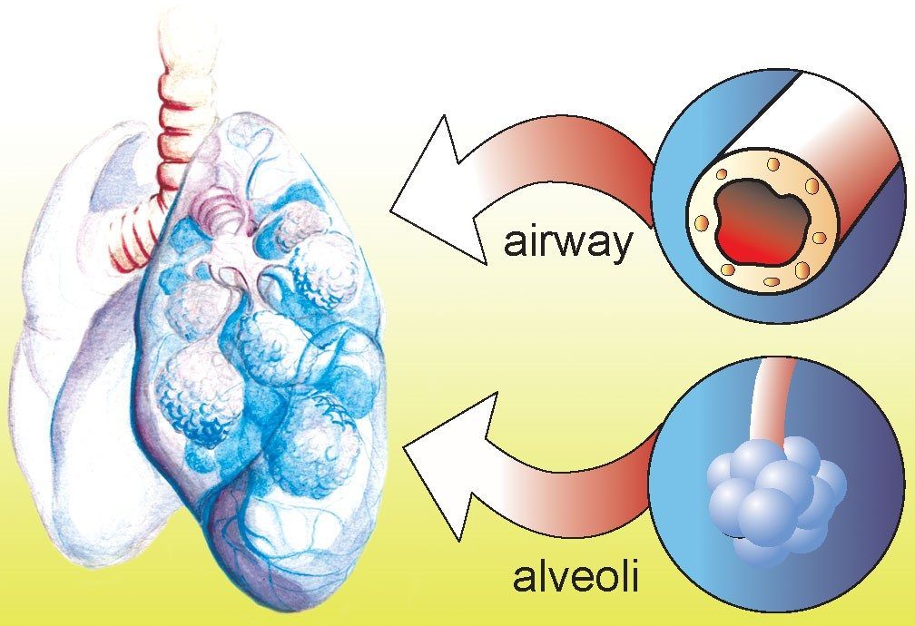 Title COPD. Image of Lungs and airway and alveoli